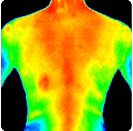 Thermography Early Detection